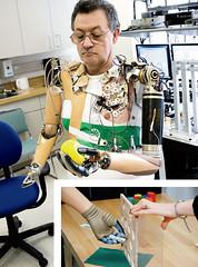 bionic-arm-0707