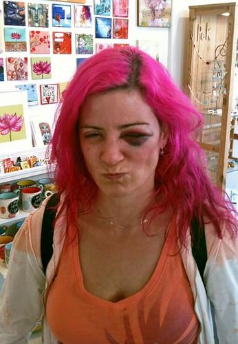 princess bean gets a black eye
