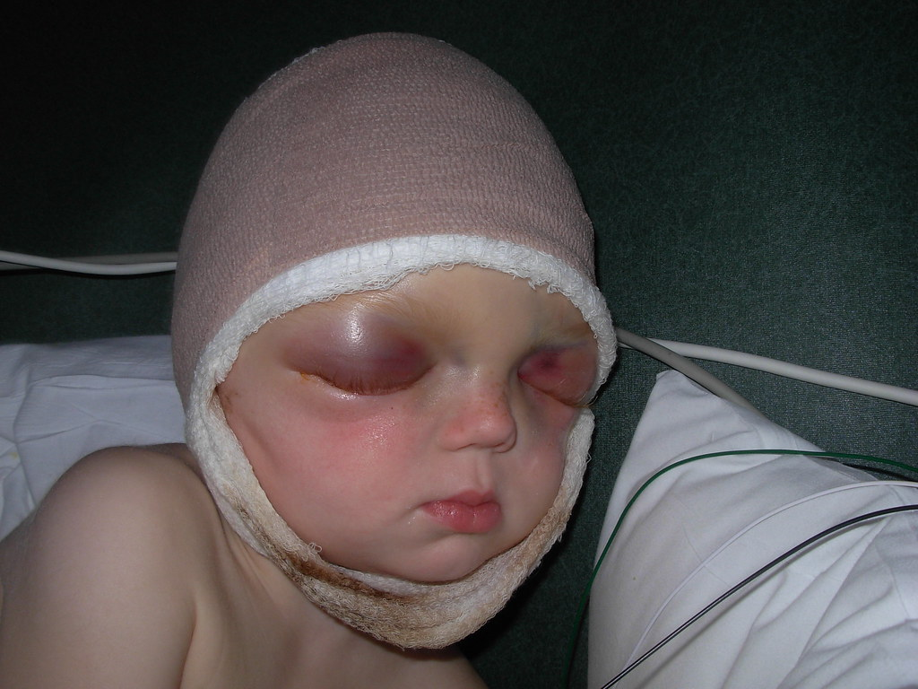Sam's eyelids show the swelling from Forehead-over-the-face scalp 'de-gloving'