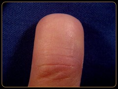 Finger stumps after 1 year (weaponeer) Tags: fingers hand amputation stumps amputee scars partialhandamputation finger stump scar injury tramatic nubs fingerstump stumpy cutofffingers choppedofffingers amputations messedup nub