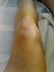 Pre-op knee