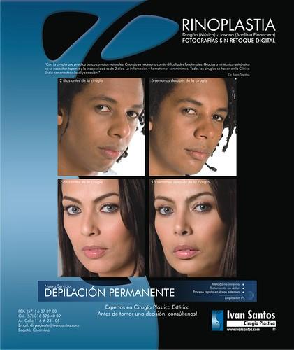 Rinoplastia - Ivan Santos Cirugía Plastica