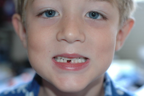lost tooth!