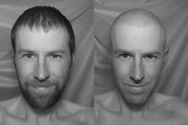 beforeafter by My brain hurts! (Meik Weissert)