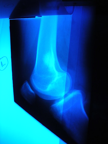 Knee - side view Xray.