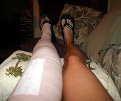 Mummified (teacherholly) Tags: legs leg holly surgery cast mummy longlegs mummified teacherholly