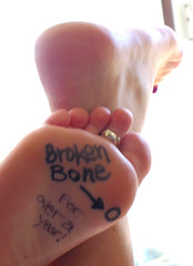 broken bone (*Kristene) Tags: feet broken writing toes thankyou much carbon xoxox kristene explored futab