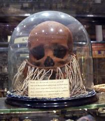 Andaman skull