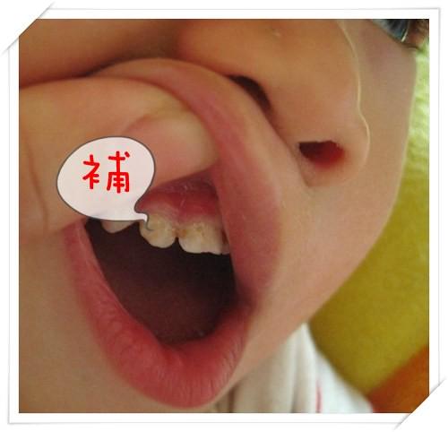 101110-補牙
