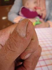 El Dedo de Ale