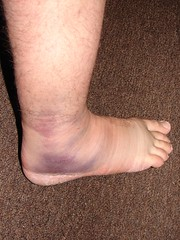 the nasty rolled ankle 1