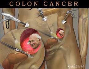 Colon Cancer Dick Head