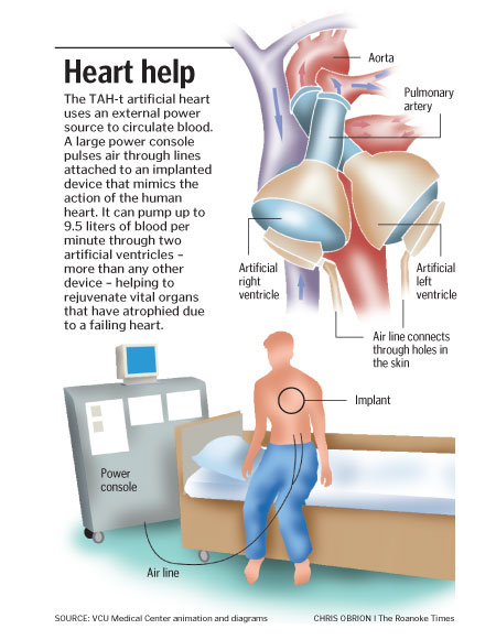 Artificial heart research paper