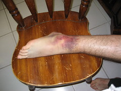 bad ankle