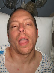 chickenpox 009 (barbwatts) Tags: brian cancer chickenpox