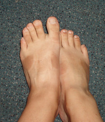 ruskettuneet jalat