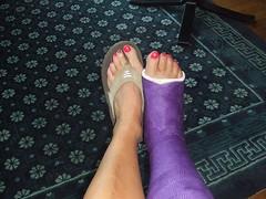 MTkyNzkzNzcxX2FlZWFlNTQ3ZWJfei5qcGc (chilltown1) Tags: toes cast ankle