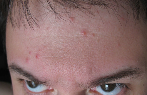 My recent stress has manifested itself as forehead zits!