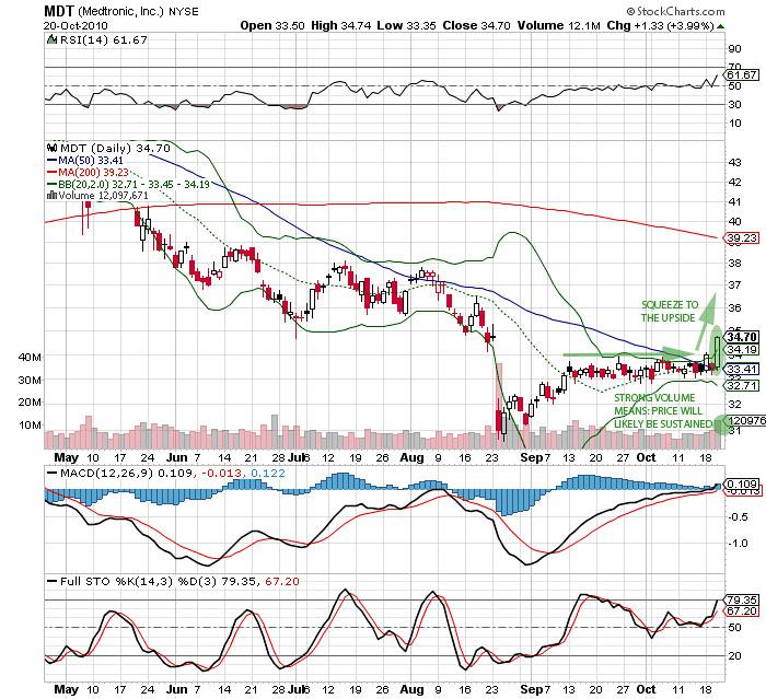 [2010.10.20] MDT.volatility.squeeze