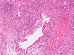Bronchocentric granulomatosis  Case 145 (Pulmonary Pathology) Tags: microscopic specimen pathology lung aspergillus abpa granulomatosis bronchocentric