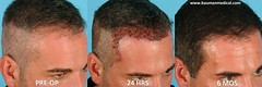 4733395547 94433a728c m FUE   Follicular Unit Extraction with NeoGraft
