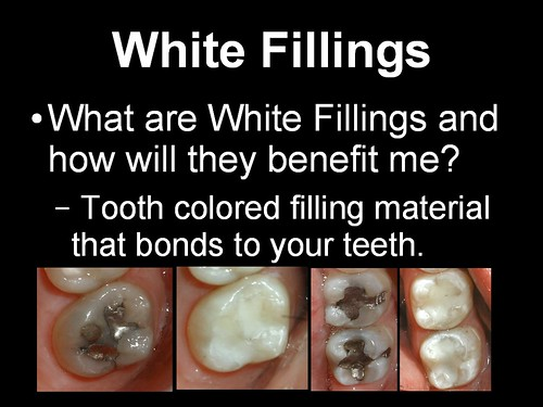 White Fillings 1