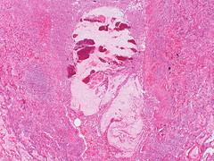 Mucoid impaction of bronchi (Pulmonary Pathology) Tags: microscopic specimen pathology lung aspergillus bronchus abpa mucoidimpaction