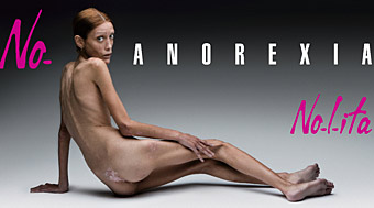 Toscani: anorexia