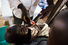 MSF assists malnourished children in Leer (Albert Gonzalez Farran) Tags: children southsudan leer health clinic msf malnourishment malnutrition doctorswithoutborders unitystate