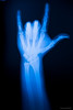 love (Howie Muzika) Tags: hands finger xray bones wrist forearm righthand asllove rightarm