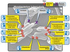 Multidrug-Resistant Tuberculosis (MDR TB) and Second-Line Treatments (NIAID) Tags: tb tuberculosis xdrtb mycobacteriumtuberculosis