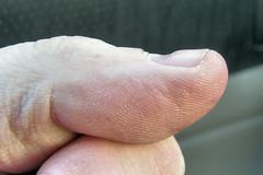 My Deformed Thumbnail (Eyellgeteven) Tags: abstract strange flesh weird aftermath skin wounded nail digit thumb abstraction unusual wtf thumbnail fingernail wound bandaid bandage bizarre deformed thumbprint indent indented eyellgeteven