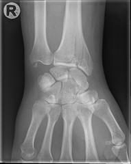 im000004.jpg (Bo Mertz) Tags: broken xray wrist rntgen rngten