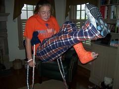 xoxoxo_pics043 (cb_777a) Tags: usa broken foot toes leg cast crutches ankle