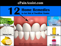 Home Remedies to Get Rid of Swollen Gums (ePainAssist) Tags: breath swelling lemonjuice aloevera badbreath homeremedies allergicreaction swollengums epainassist hydrogenperoxidetreatment toothache dental swollengumstreatment