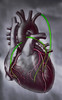 My heart will go on .... (Siggi007) Tags: life portrait colour colors photography living photo amazing perfect paint flickr foto heart body drawing awesome details picture surgery doctor vein veins operation contrasts bypass farben aorta fotografi bilde