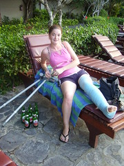 sskinny_16 (cb_777a) Tags: ireland broken foot toes leg cast crutches ankle