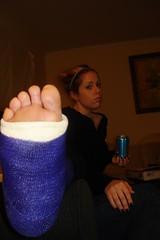 l_28679db54450149e5a1658 (cb_777a) Tags: usa broken foot toes leg cast crutches ankle