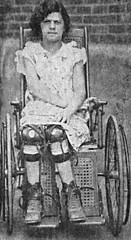 1929-1c (jackcast2015) Tags: disabled polio calipers legbraces disabledwomen disabledwoman handicappedwomen disabledladies