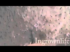 removing lots of ingrown hairs by squeezing NO AUDIO (johnanderson11) Tags: by no audio ingrown lots hairs removing squeezing