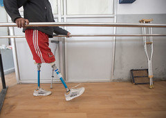 Ramesh uses the walkway within the NDF clinic to train on his prosthetics (Handicap International UK) Tags: nepal earthquake kathmandu survivors disability