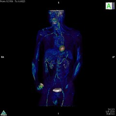 PET Scan of a Patient with Active Vasculitis (National Institute of Arthritis and Musculoskeleta) Tags: aorta bloodvessels inflammation petscan giantcellarteritis vasculitismoviescientificimage