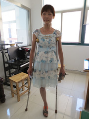 cn136224318846 (cb_777a) Tags: china disabled crutches handicapped amputee onelegged