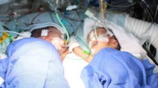 瑞士医生成功分离历史上最年幼连体婴儿