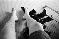 ACL RECO (OGD-) Tags: life blackandwhite bw film feet me 35mm photography mono nikon view kodak 400tx surgery nikkor knee acl nikon35ti