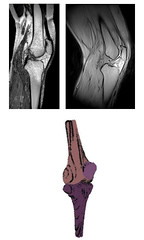 3D modeling to  estimate knee alignment in the real world (hiphealth) Tags: scan health research knee mri alignment chhm