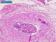 Qiao's Pathology: Thyroid Hürthle Cell (Oncocytic) Carcinoma (Qiao's Pathology (Art and Science in Medicine)) Tags: cell microscopic pathology thyroid carcinoma qiaos oncocytic hürthle