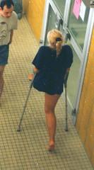 amp-1018 (vsmrn) Tags: woman crutches amputee onelegged
