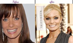 How Jaime Pressly Seems Right After Plastic Surgery (michellechambliss644) Tags: jaimepressly