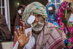 116 (ahmadtalha1987) Tags: poverty travel pakistan portrait people eye portraits poor surgery medical health medicine camps sindh nagar cataract facilities tharparkar nagarparkar